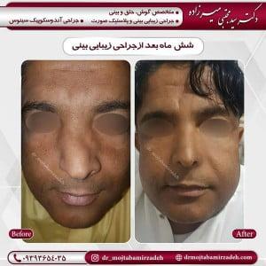 جراحی-بینی-طبیعی