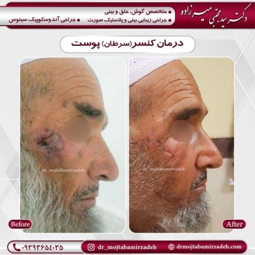 درمان کنسر پوست