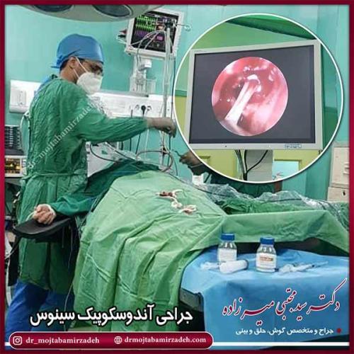 جراحی-آندوسکوپی-سینوس-2