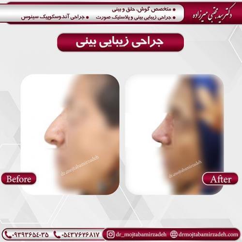 جراحی-بینی-18 (1)
