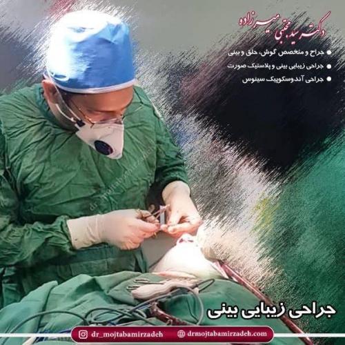 جراحی-بینی-35