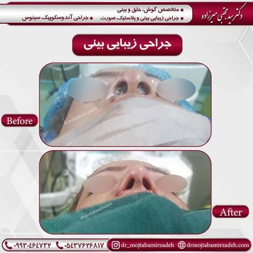 جراحی-بینی-44