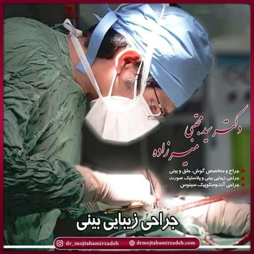 جراحی-بینی-45