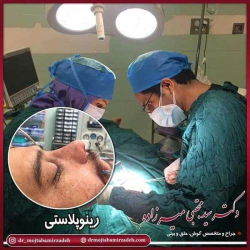 جراحی-بینی-49