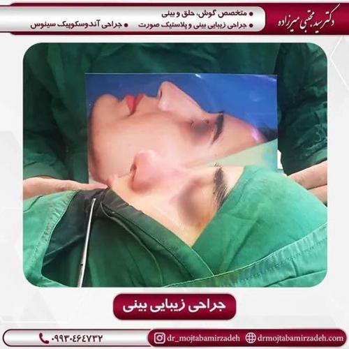جراحی-بینی-53