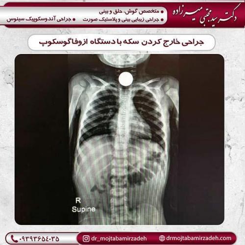 جراحی-ها-1