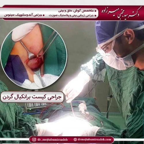جراحی-کیست-3