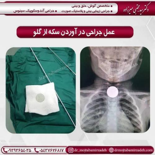 عمل-جراحی-درآوردن-سکه-از-گلو-1