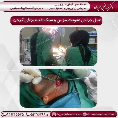 عمل-جراحی-عفونت-مزمن-و-سنگ-غده-بزاقی-گردن-1